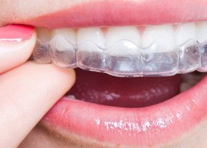 Guide To Caring For Your Invisalign Aligners